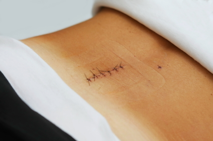 back surgery recovery