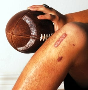 football injury treatment