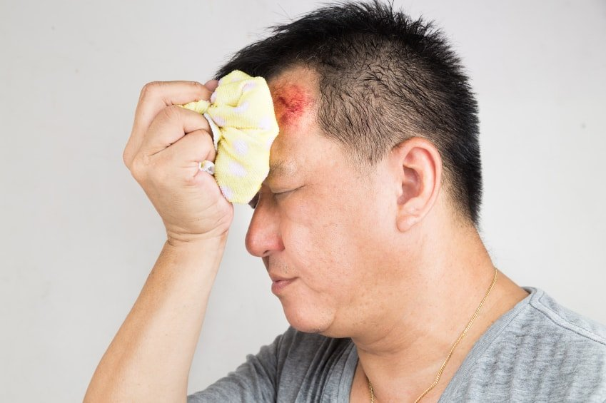 Head Injury  >> 5 Tips For Recovering From A Minor Head Injury