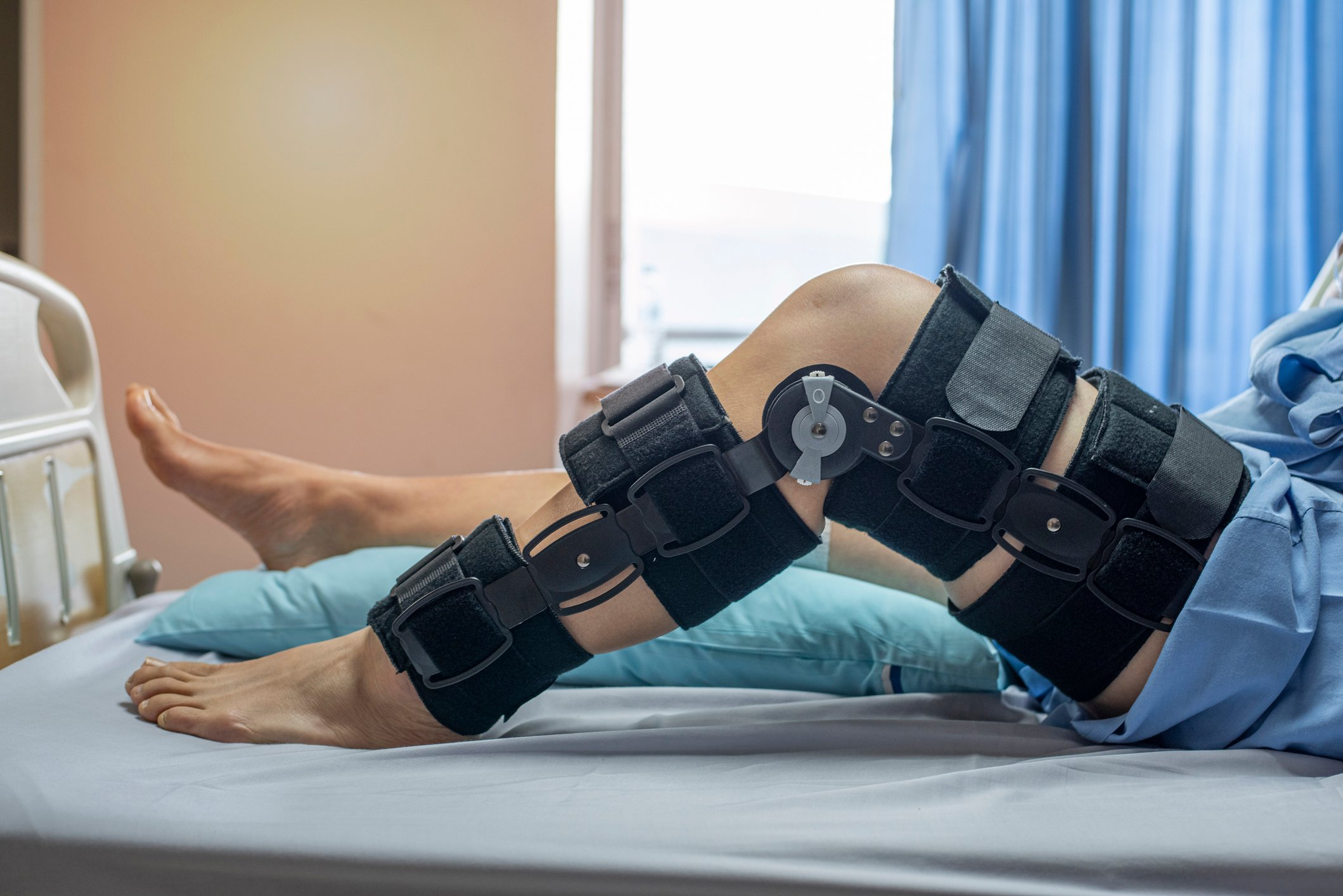 ACL Surgery Recovery 101: Timeline & Tips