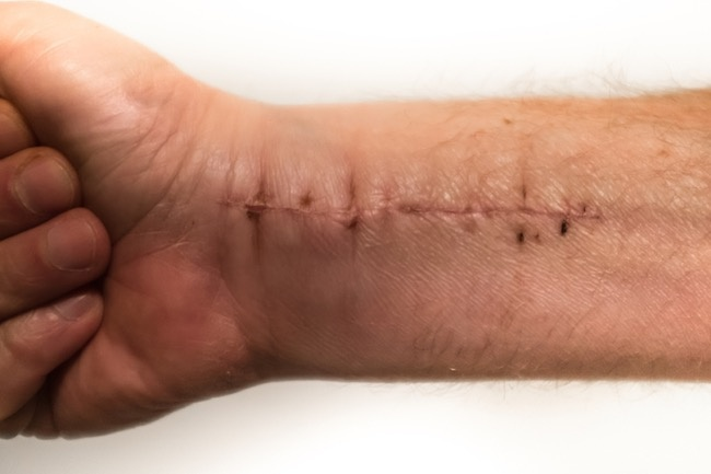 4_Ways_to_Prepare_for_Wrist_Surgery_Recovery