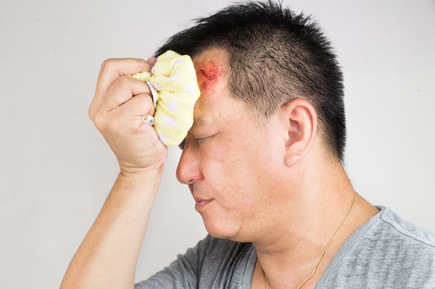 5 Tips for Recovering from a Minor Head Injury